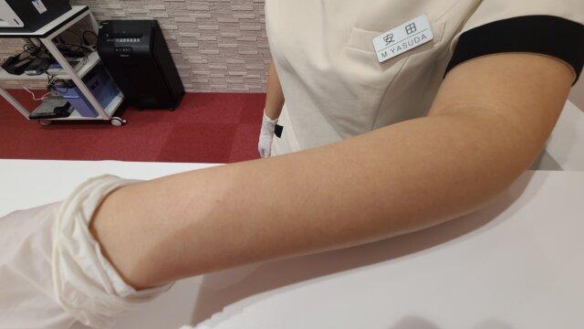 恋肌のスタッフの肌状態