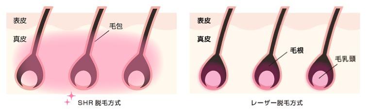 ラココの脱毛の効果の仕組み