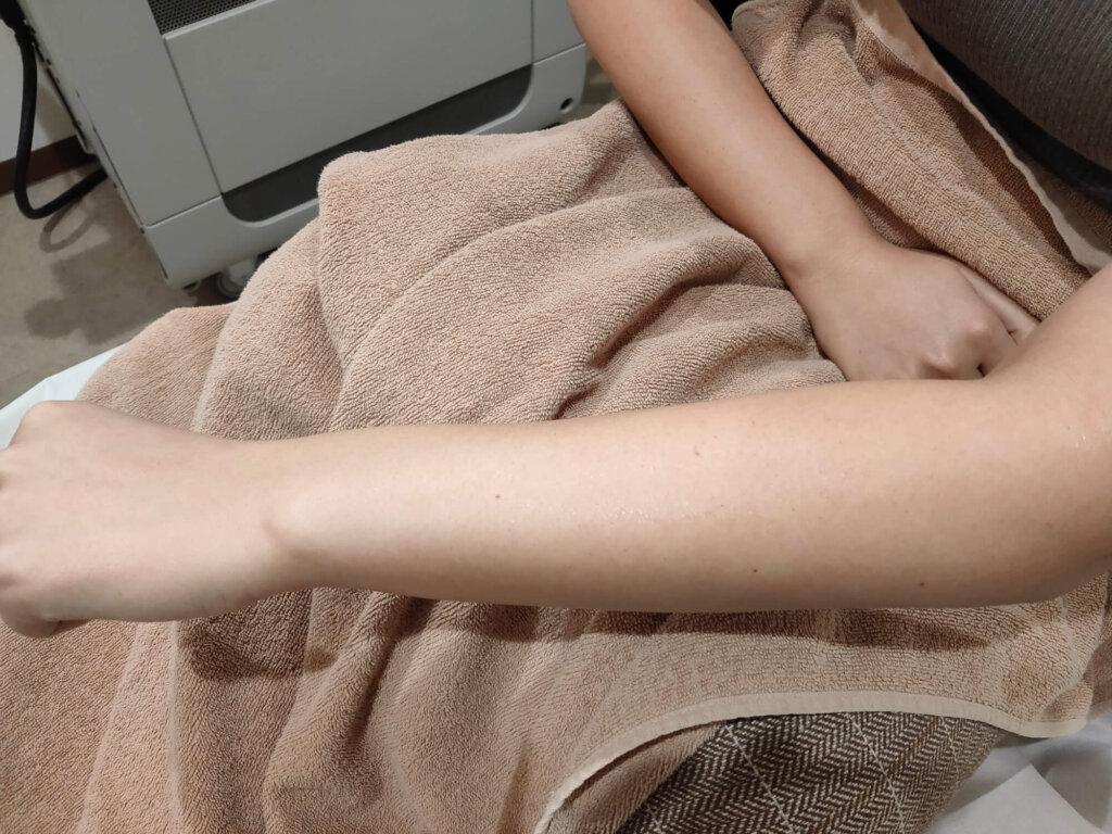 施術後の肌状態