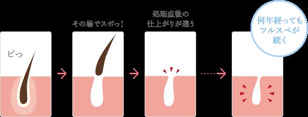 TBCスーパー脱毛の方法