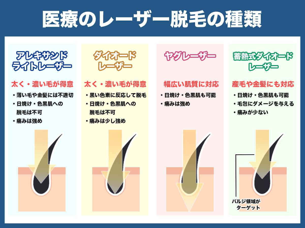 医療のレーザー脱毛の種類