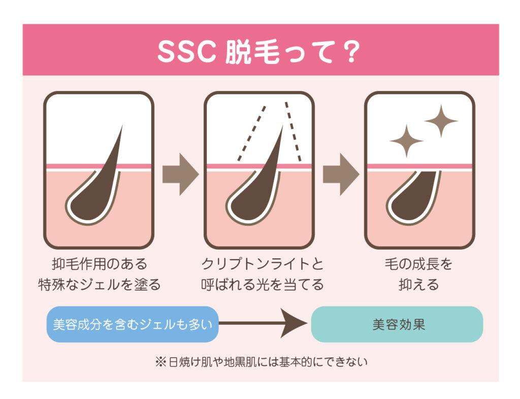 SSC脱毛の仕組み