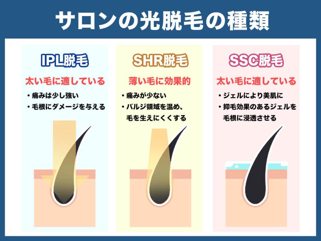 サロンの光脱毛の種類